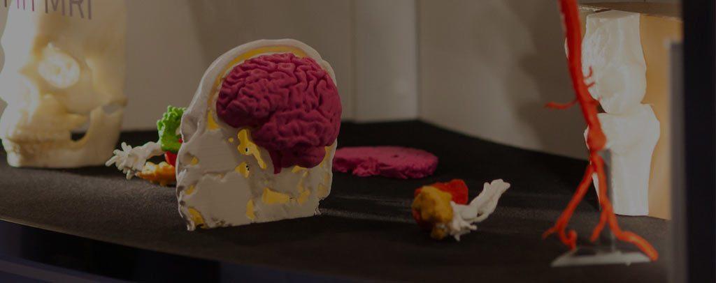 چاپگر سه بعدی در پزشکی
